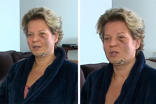 VÍDEO: Deputada Joice Hasselmann aparece com machucados no corpo e diz que sofreu atentado